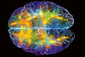 Brain_12-1068x711